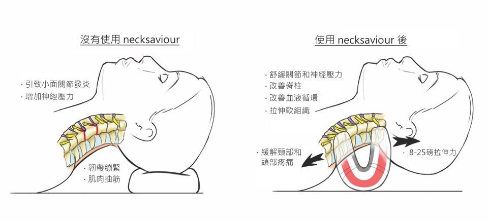 英國 necksaviour 頸部伸展器-20
