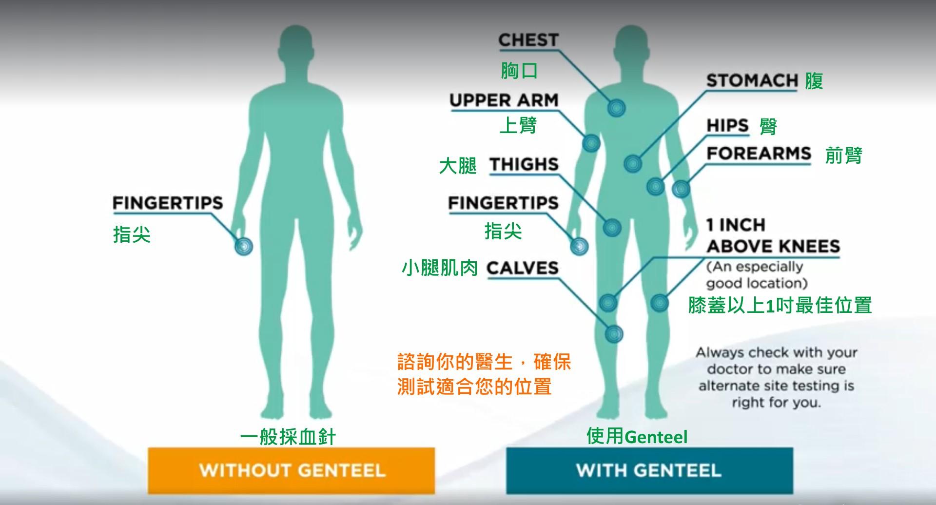 美國 Genteel 突破性無痛採血器3