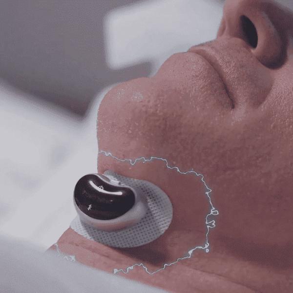 13Snore Circle 智能電子肌肉刺激 止鼾器